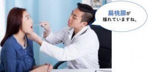 扁桃腺の診察