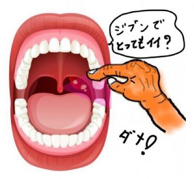 膿栓を取るのは危険