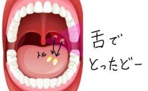 舌で膿栓を取る