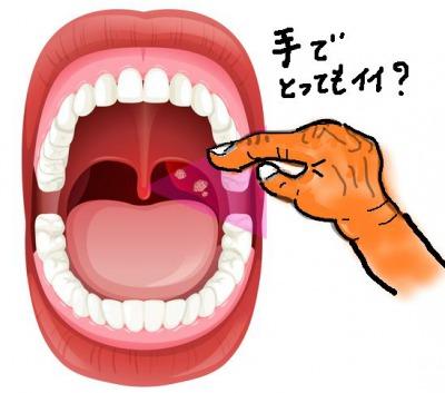 膿栓を指で取り除く方法
