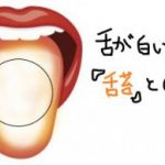 舌が白いのは舌苔という病気。舌苔について調べてわかったこととは?