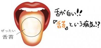 舌が白いのは病気かもしれない?