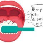 舌が臭い、口臭がするそれは舌苔が原因です。舌苔を取り除く方法とは?