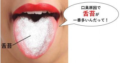 口臭原因で舌苔が一番多い