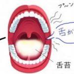 超カンタン!口臭の判断ポイントは「舌が白いかどうかだけ…」