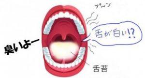 舌が白くて臭い