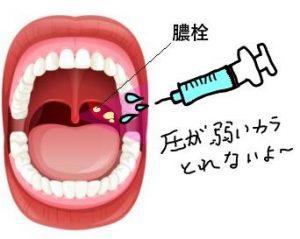 膿栓の取り方…シリンジ