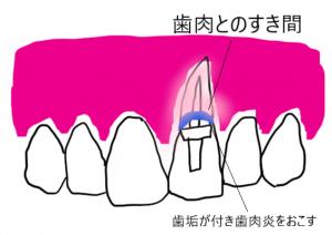差し歯が臭い原因