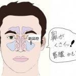 鼻の中が臭い!原因不明の場合は蓄膿症に注意、「3割の裏にある後鼻漏」