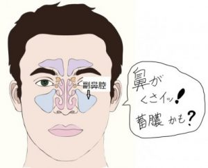 蓄膿症で鼻が臭い