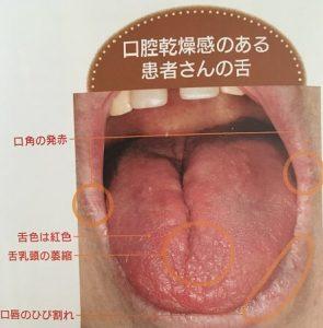 口腔乾燥のある舌