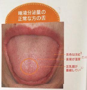 唾液分泌量が正常な舌