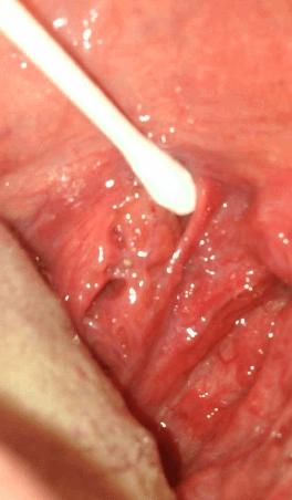 綿棒で膿栓(臭い玉)を取る