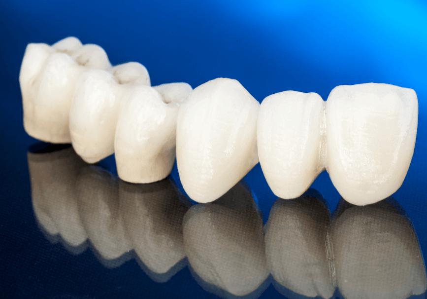 差し歯と奥歯のブリッジ