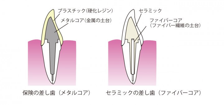 差し歯の図