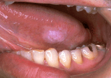 舌がんでできた舌のふちのできもの