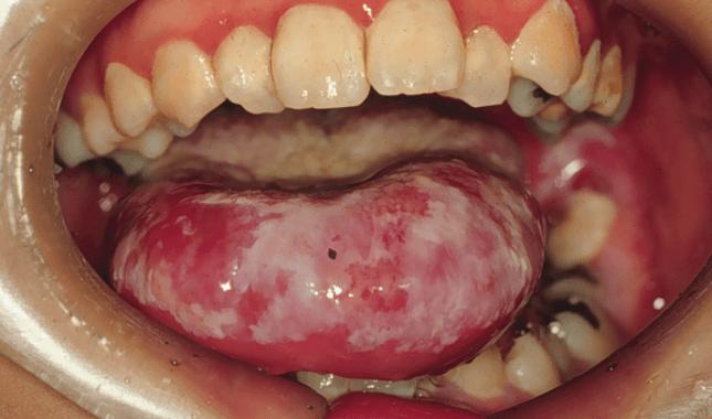 カンジダの舌