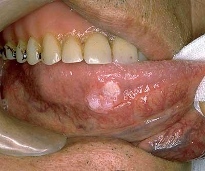 舌の縁にできた癌