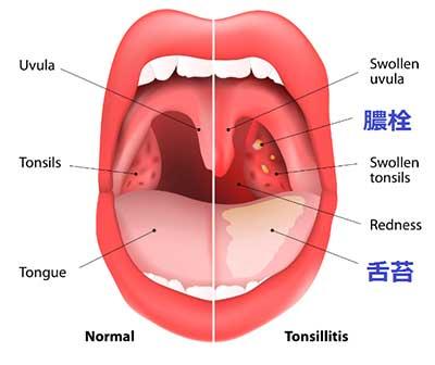 舌苔と膿栓の図解