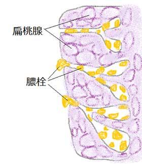 扁桃腺にできた臭い玉