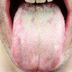 舌がヒリヒリするのは口腔カンジタ症かもしれない。舌が白いかチェックしてください