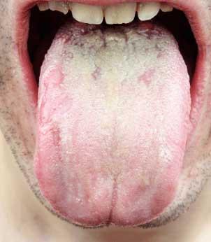 舌にびっしりと付いた舌苔
