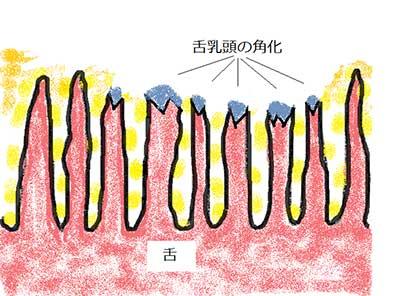 舌磨きによって角化を起こした舌乳頭