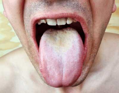 ひどい舌苔の男性