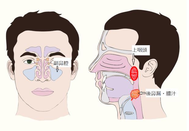 後鼻漏の図