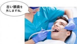 古い銀歯を外す