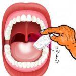 舌苔(ぜったい)で困っている人必見!コットンで苔をふき取る方法