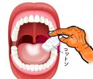 舌苔をコットンで拭きとる