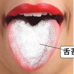 舌の汚れが取れない!?その原因とおすすめの取り方について