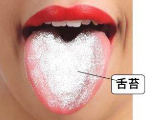 舌に舌苔が付着