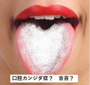 口腔カンジダ症か舌苔か
