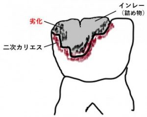 銀歯の劣化