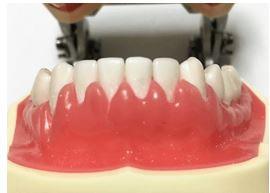 歯茎がブヨブヨに腫れている模型