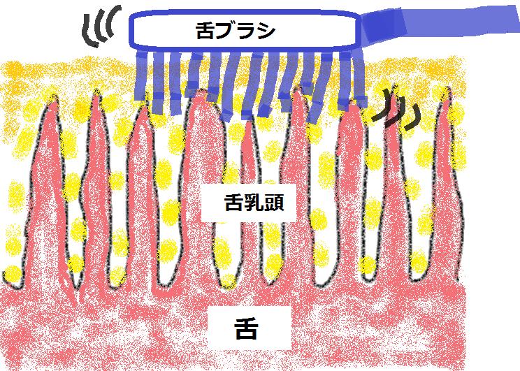 舌を磨いて舌乳頭に傷が付く