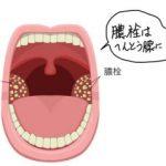 扁桃腺は膿栓の溜まり場だった!?膿栓が溜まる理由と対処法とは?