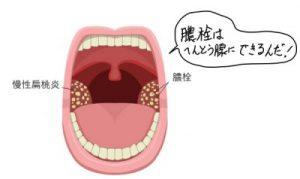 扁桃腺にできた膿栓
