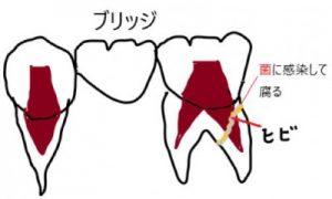 ブリッジの歯根が破折する