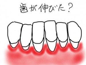 歯茎が下がり歯が伸びた