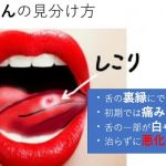 舌がんと口内炎の違い!見分け方と注意する4つのポイント