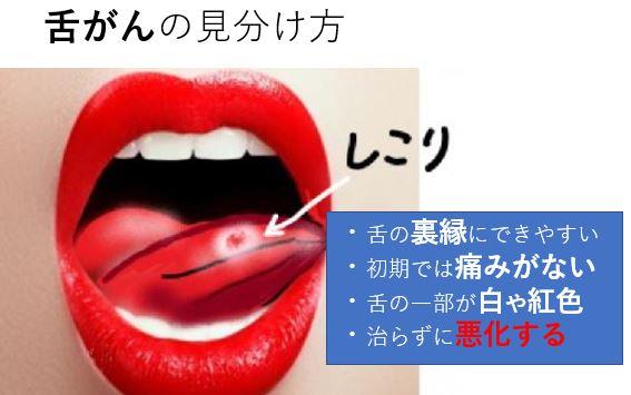 舌がんの見分け方