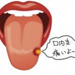 舌の白い口内炎が痛い!原因は?薬は?治し方は?