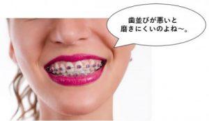 歯並びが悪いと磨きにくい