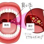口臭の元「膿栓」を取り除き・予防する方法を知っていますか?