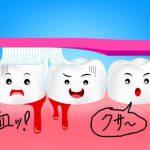 奥歯の歯茎が臭い!歯周病は歯磨きだけでは治らない?