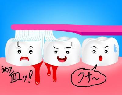 歯周病を歯磨きで予防する