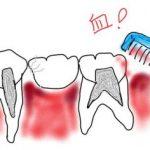 歯茎から出血の9割は歯周病!白血病、更年期障害、糖尿病が原因のことも
